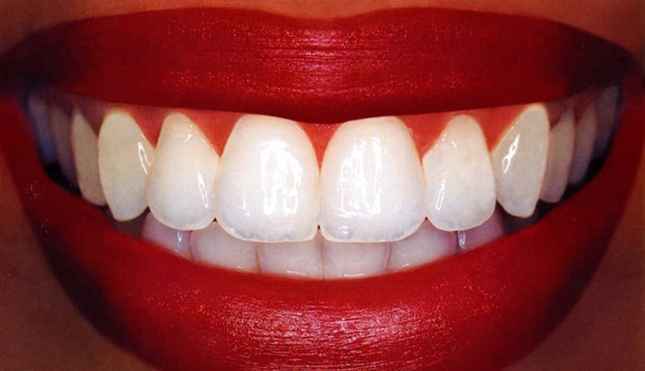 Do You Want Whiter Teeth? Follow These Tips Today to ...