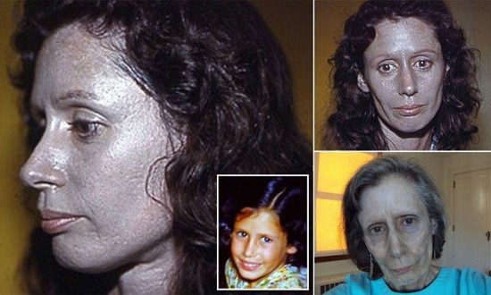 Meet Rosemary Jacobs, the Woman Whose Skin Turned Silver ...