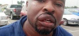 See What Patience Jonathan's Air Force Guards Did To Businessman In Delta State