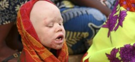 Four Charged Over Albino Murder In Tanzania Amid Growing Calls For Action
