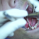 Rugby Players With Missing Teeth Implanted With Beer Bottle Openers As Replacements