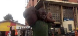 Boy With Giant Hand Found Begging On Lagos Street [Graphic Photos]