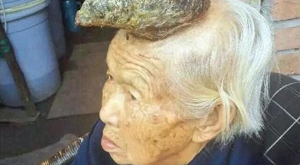"""Chinese """"Unicorn Woman"""" With 5-Inch Horn Growing Out Of Her Head [PHOTO]"""