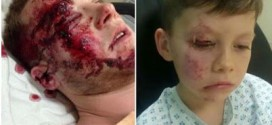 Hero Uncle: Man Uses His Body As Human Shield To Protect His Nephew From Being Hit By A Car