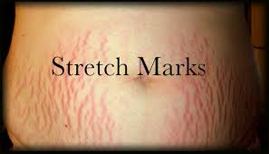 how to make stretch marks go away in one day