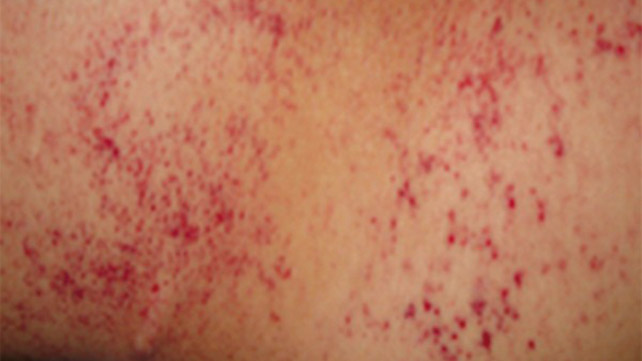 What Causes Petechiae Information Nigeria