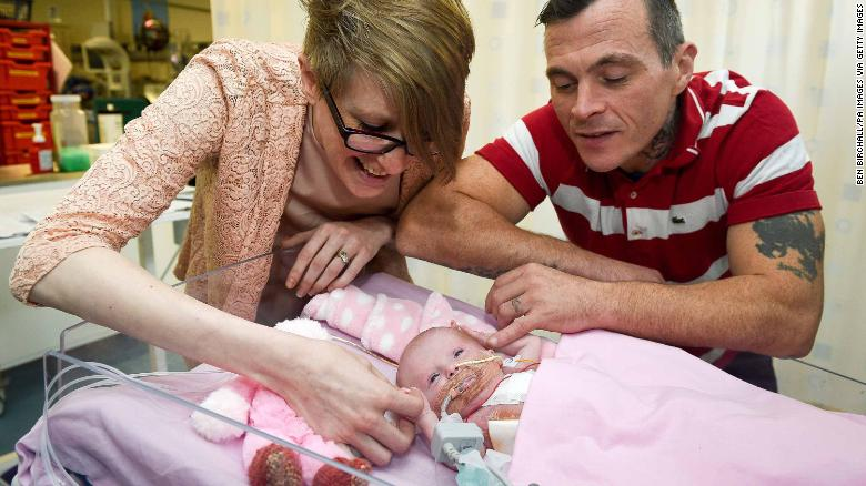 Baby Born With Heart Outside Her Body Survives