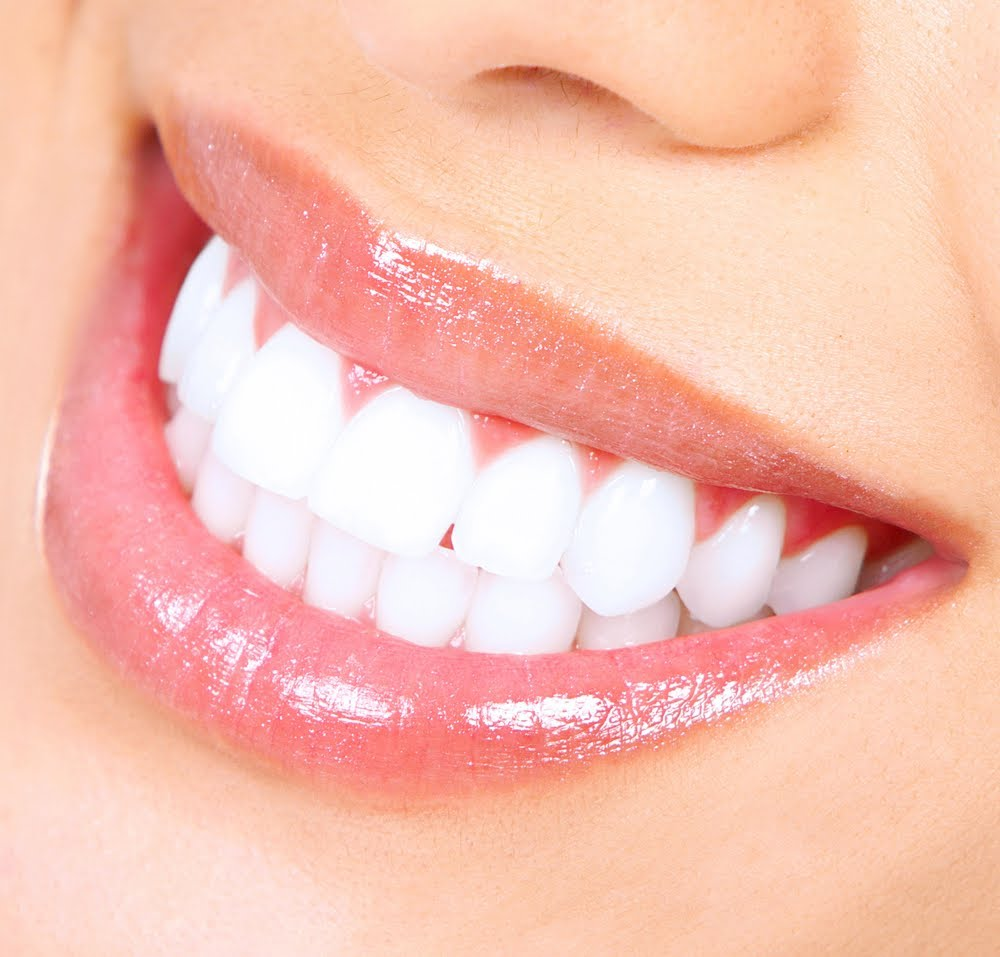 Home Remedies That Will Make Your Teeth Sparkling White ... |Caucasian Teeth