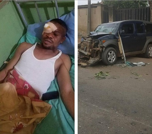 Nollywood Actor Hospitalized, Almost Lost An Eye Following
