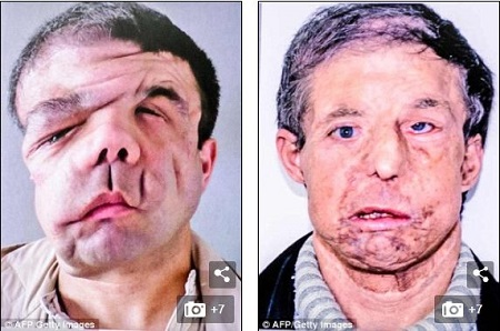 The Frenchman 'with three faces' speaks out after second transplant