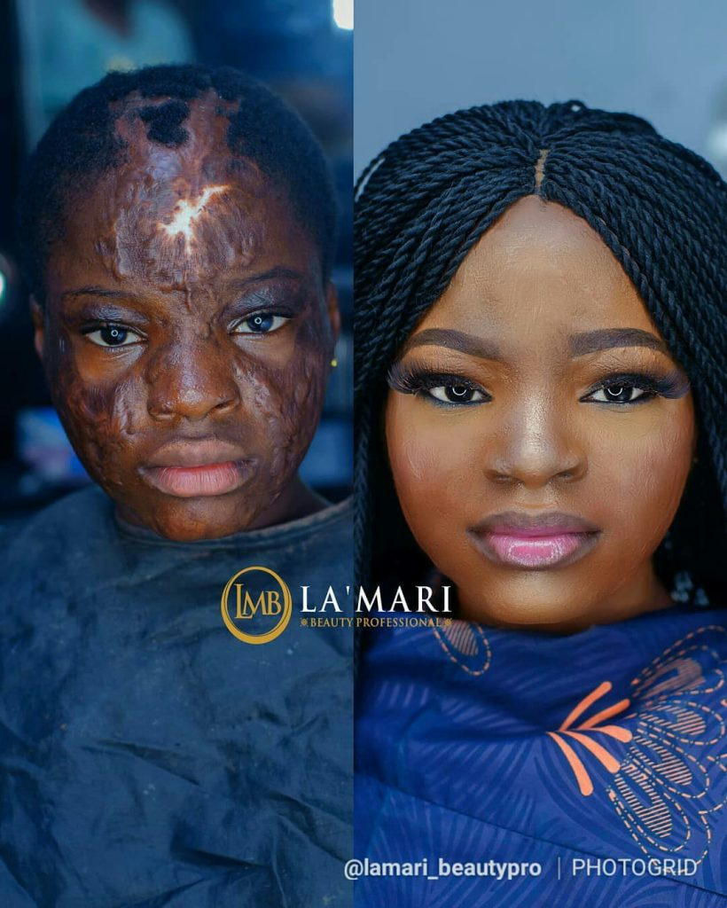 This Burn Survivor's Makeover will Warm Your Hearts 💕