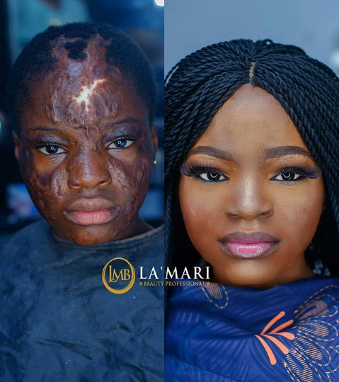Shocking Makeup Transformation Of A Lady Who's Face Is Disfigured
