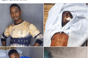 Nigerian man allegedly fleeing from SARS dies of internal bleeding after hitting his chest on an iron gate
