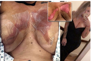 Lady Left In Agony After Her Fake Boobs Were Melted By Hot Water