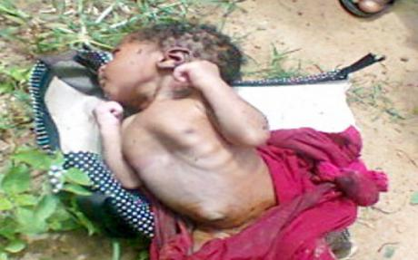 8 Day Old Baby Dumped At Kaduna Cemetery Found Alive With Maggots All Over His Body