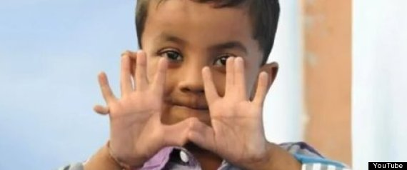 PHOTO: Child Born With 13 Fingers And 12 Toes