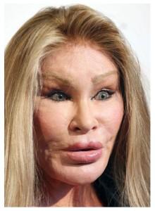 facelift gone wrong