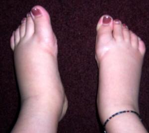 swollen-feet1