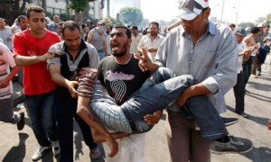 An injured pro-Morsi protester in Cairo
