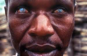 file: man struck with river blindness