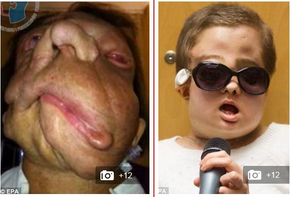 disfigured-by-facial-big-boob-milf-pornstar