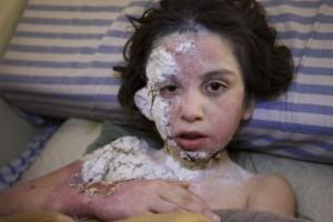 syrian-children-deaths-conflict