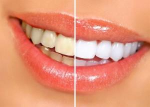 white_teeth-300x214
