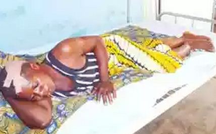 Herdsman Attacks Housewife For Resisting Rape Attempt In Abuja [PHOTO]