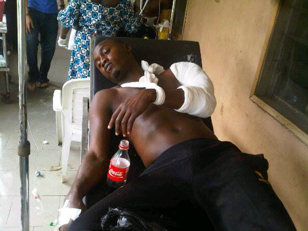 Injured Gambo Mohammed at the Federal Medical Centre, Lokoja.
