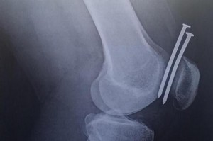 Chicago-man-accidentally-shoots-two-nails-into-his-knee-with-nail-gun