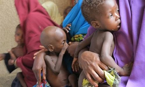 children-malnourished