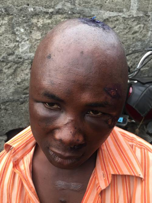 okada-rider-brutalized
