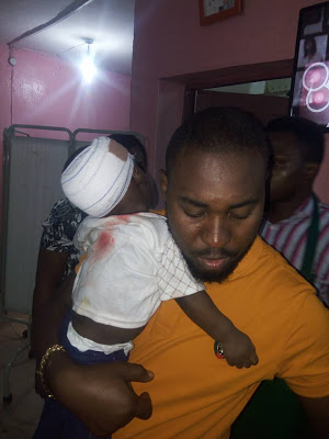 Baby survives fatal accident