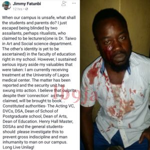 Unilag Student Escaped Ritualist Attack On Campus.