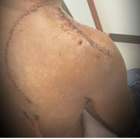 """I'm Still In A Little Bit Of Pain"" – Banky W Speaks On His Skin Cancer Surgery"