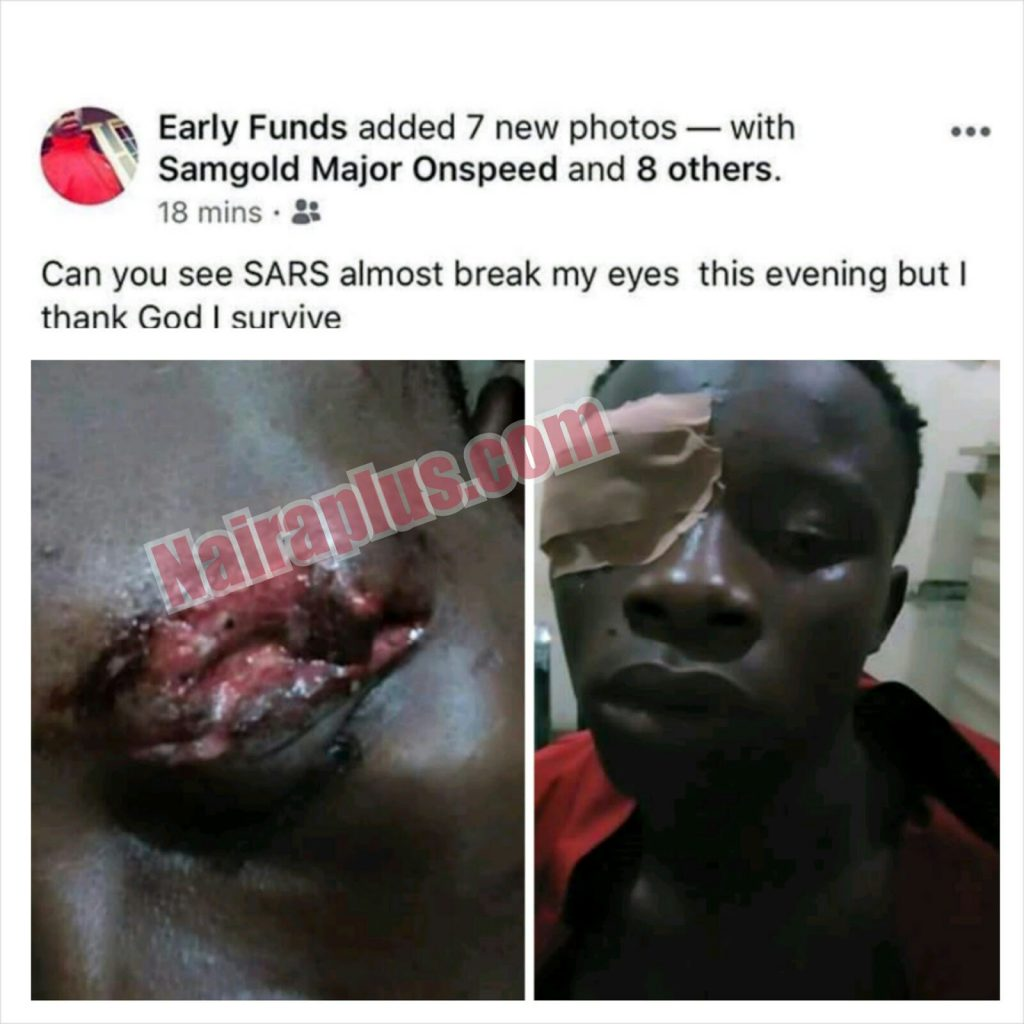 Man Almost Lost His Eye After Being Beaten By SARS Operatives In Lagos (Photos)