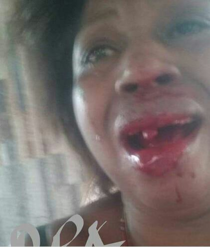 Man Knocks Off Wife's Teeth After Lying To His Kids That She Is Dead