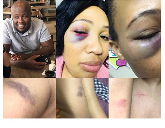 Fair Beautiful Lady turns Black, After been Battered by her Husband (Photos