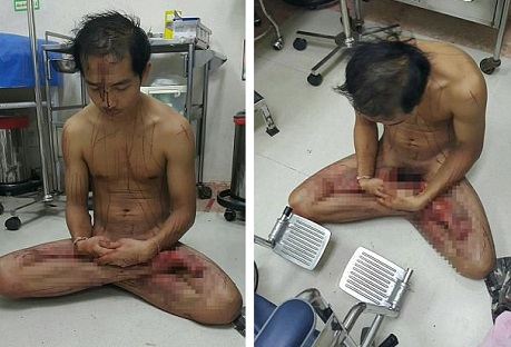 m1 - Pictures: Man Hacks His Penis Whereas Watching Porn