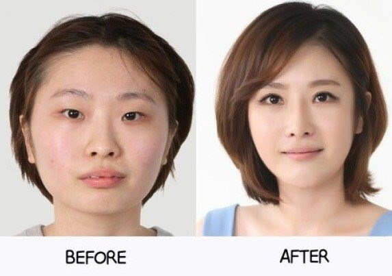 These Amazing Transformation After Their Plastic Surgery Will Blow