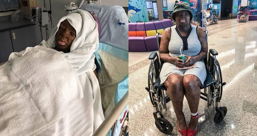 Sosoliso plane crash survivor, Kechi Okwuchi undergoes surgery (Photo)