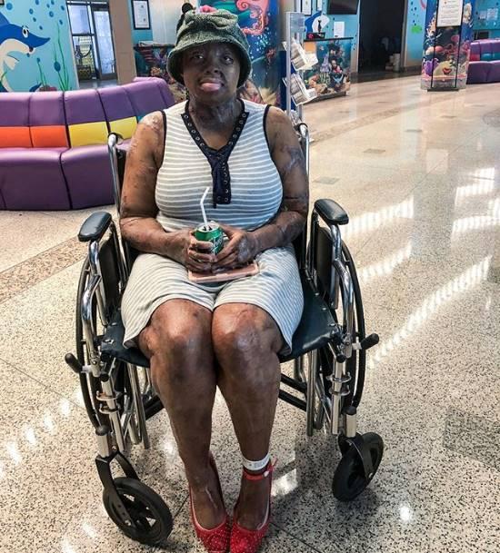 sosoliso plane crash survivor kechi okwuchi undergoes surgery photo 2