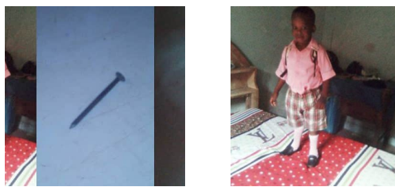Nigerian mom reveals how her on survived after swallowing a nail