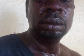 [Photos]: Veteran singer Baba Fryo beaten by unknown soldiers