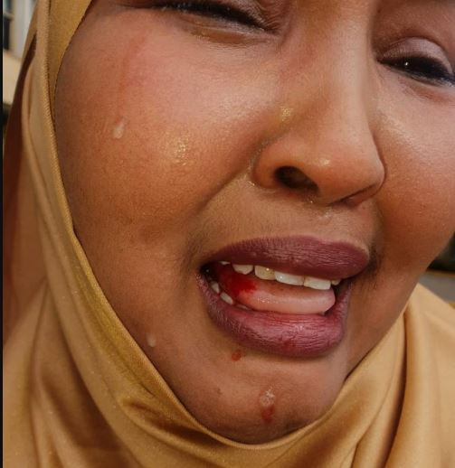 [Photo]: Female lawmaker in Kenya beaten up by her male colleagues
