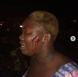0 IMG 20190701 214200 441 300x296 - Security Men Allegedly Beat Ladies For Talking Loud In Hotel
