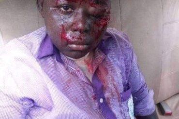 [Photo]: Teacher brutally beats SS1 student