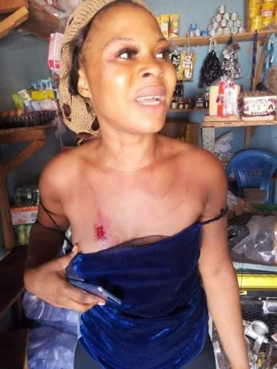 [Photos]: Woman brutally beaten by security guards in Enugu