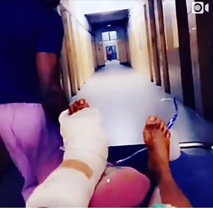 [Photos]: Cossy Ojiakor Undergoes Surgery After Horrific Fall