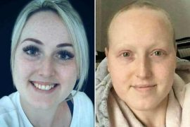 Woman Undergoes Cancer Treatment For Cancer She Does Not Have